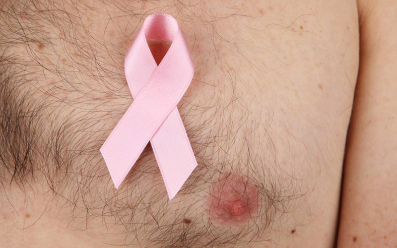 Understanding male breast cancer