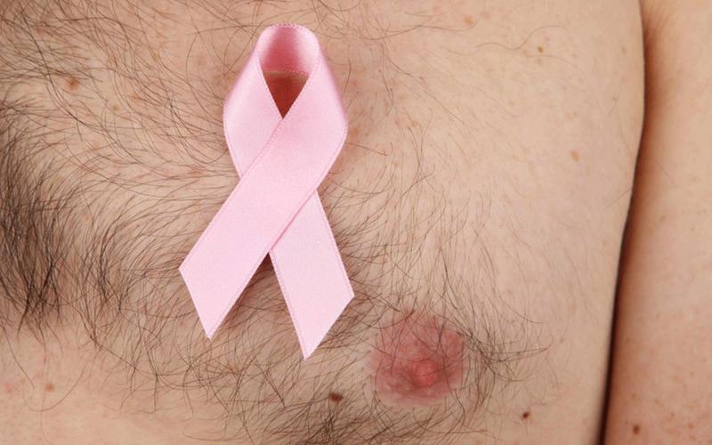 Understanding male breast cancer